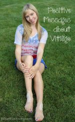 Positive Messages about Vitiligo